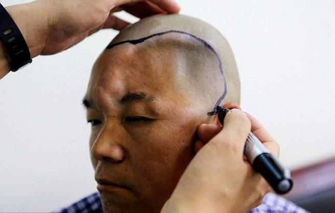 chinese-farmer-hu-skull-rebuilt-by-3d-printer1